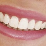 """Why """"Silver Fillings"""" Are Bad for You & How You've Been Duped to Think Otherwise (Video)"""
