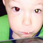 How One Mom Detected Her Son's Cancer With a Cell Phone Photo