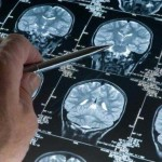Neuroscientist Shows What Fasting Does To Your Brain & Why Big Pharma Won't Study It