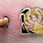 What You Need To Know About Lyme Disease: A Natural Approach To Healing