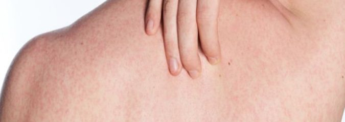 What Causes Body Acne (And How to Fix It)